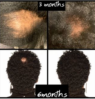 IG Hair loss.PNG