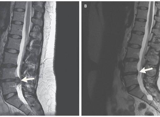 Ernia del disco e chirurgia