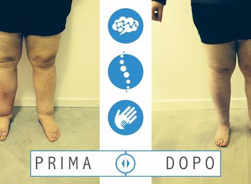 Prima e dopa la fisioterapia complessa decongestionante