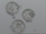 blastocyst.png