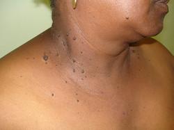 dermatosis papulosa nigra 4