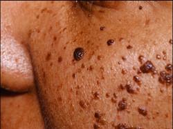 dermatosis papulosa nigra 2