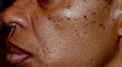 dermatosis papulosa nigra 3