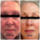 Before and After Botox, Fillers images from Wired Wellness