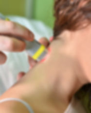 Laser therapy. Physical therapist treati
