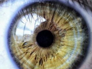 Mulheres têm envelhecimento precoce dos olhos