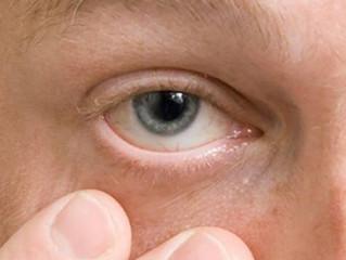 Cisco nos olhos : O que fazer?