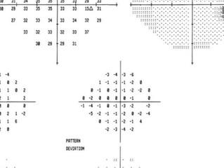 O que é campimetria computadorizada?
