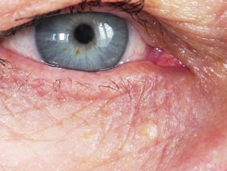 Retinopatia diabética pode causar cegueira?