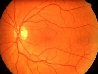 Exame oftalmológico antecipa diagnóstico de doenças