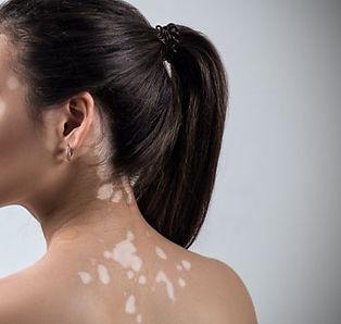 util-e-interesante-cual-causa-vitiligo-y