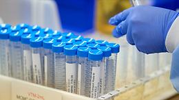 Число случаев коронавируса в мире превысило 64 млн