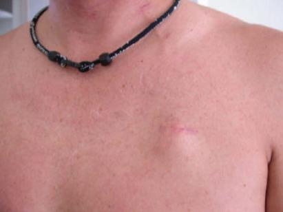 Paciente com Cateter após cicatrização
