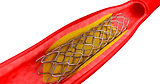 3d-printing-customized-vascular-stents-f