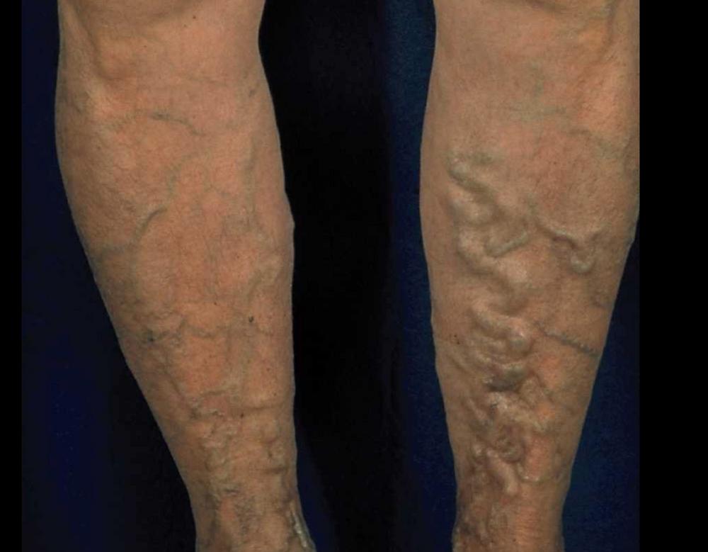 Tratamento de Varizes em Homens