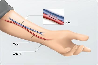 Fístula Arterivonesa