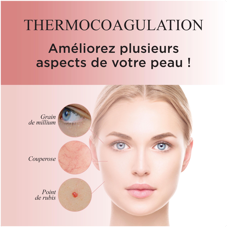 Promo_Thermocoagulation