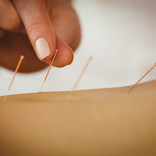 young-woman-getting-acupuncture-treatmen