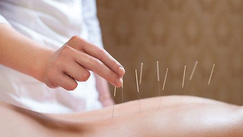 acupuntura-para-tratamento-de-coluna-128