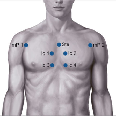 Chest picture.jpg