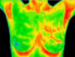 camera thermography.jpg