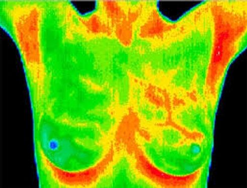 camera thermography.jpg