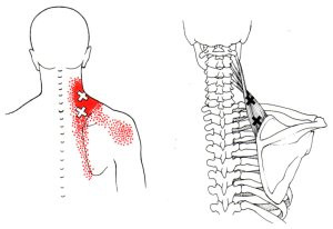 Trigger Points In the Levator Scapulae
