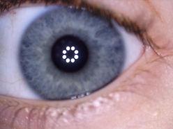 clare left eye.jpg