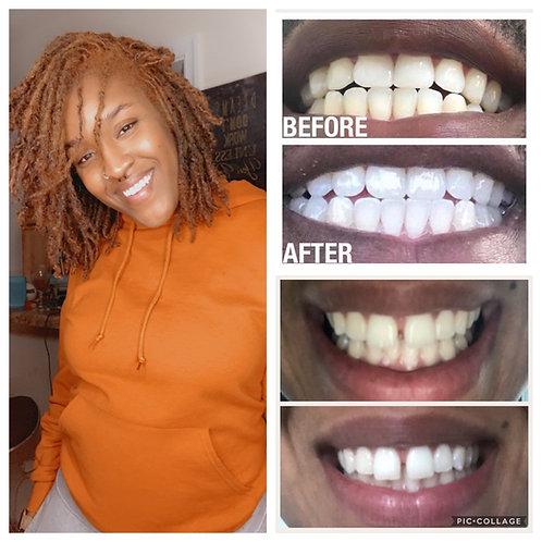 AP24 Fluoride Free Whitening Toothpaste