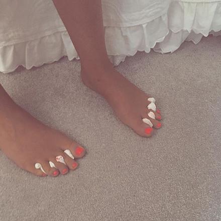 Normal polish toes