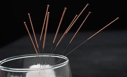 acupuncture_needles.jpg