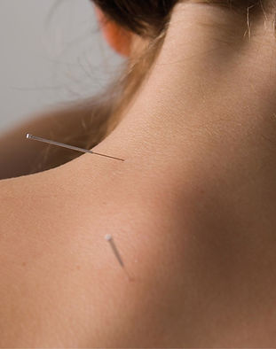 Acupuncture being done in Bookham