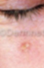 actinic-keratosis-face-1.jpg