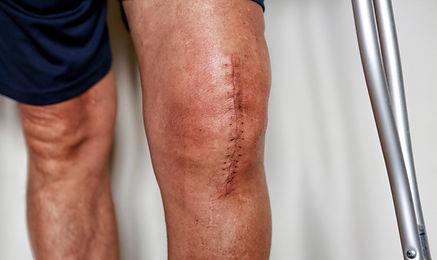 Knee-Surgery.jpg