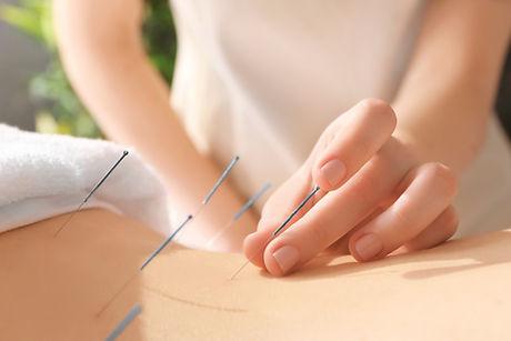 Akupunktur (2).jpg