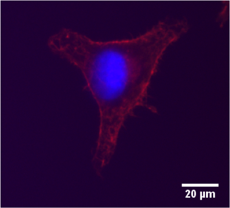 Breast Cancer Cell Image from 2013
