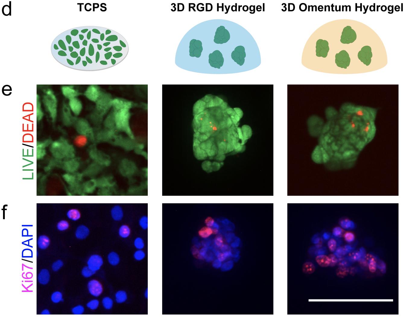 Drug Screening Tumor Spheroids