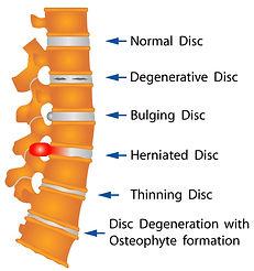 Normal vs Abnormal Vetebral Disc Anatomy