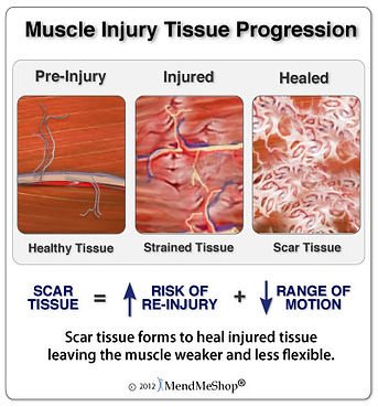 Mucle Scar Tissue