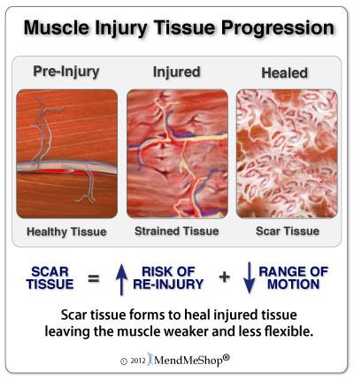 Muscle Scar Tissue Progression