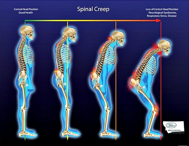 Spinal Creep...