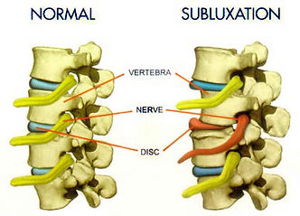 Normal Spine vs Subluxated Spine