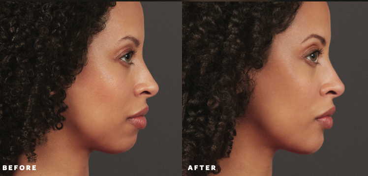 Patient Before and After Voluma XC Filler