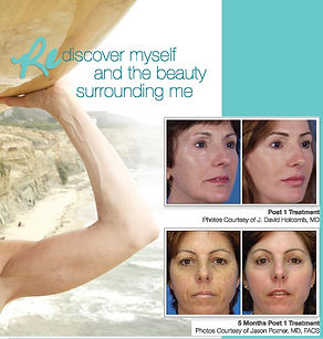 Skin Wellness MD Micro Laser Peel