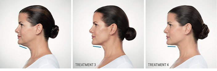 Kybella Neck Injectable Before and After