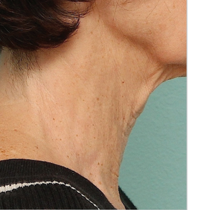 Before BBL Treatment of Neck