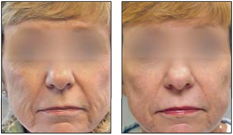 ProFractional Laser Before and After