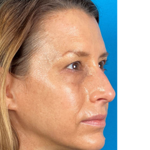 After BBL Treatment of Face