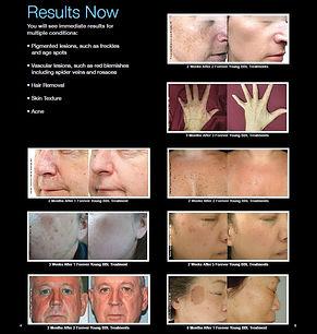 Skin Wellness MD BBL