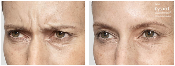 Dysport Injectable Before and After